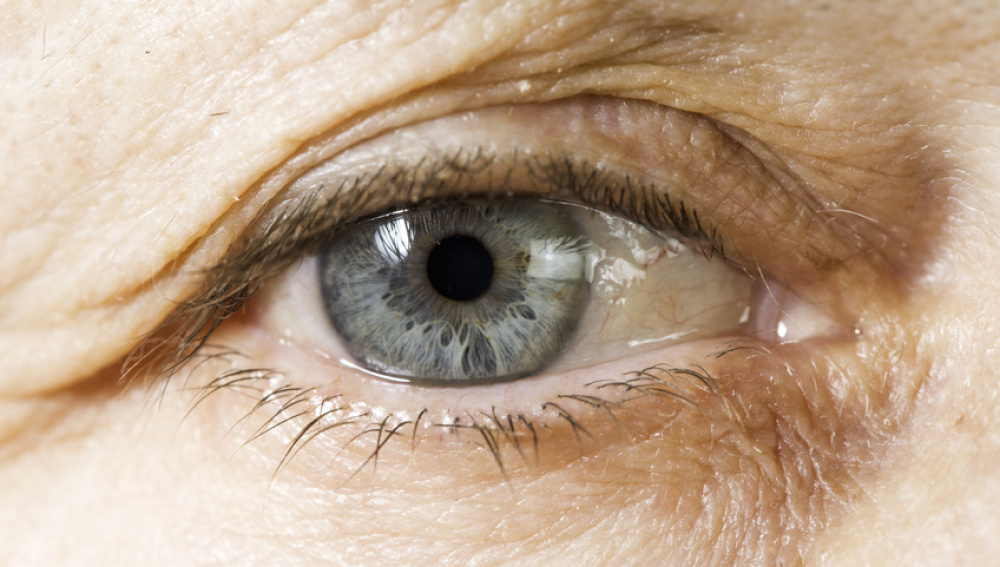 Ojo ceguera degeneración macular