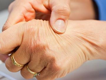 Paciente con artrosis