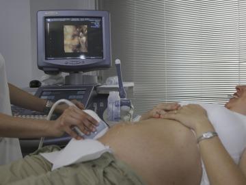 Crean una nueva técnica para visualizar embriones recién implantados