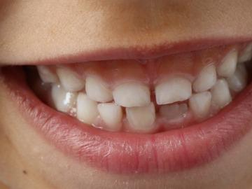 Consejos para una higiene bucal adecuada en niños