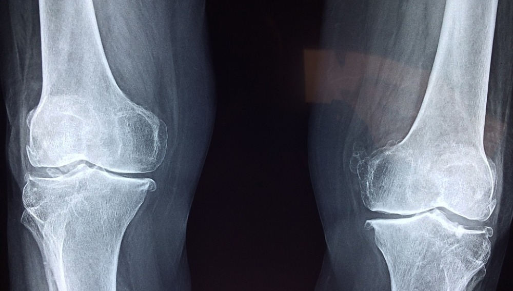 Cuidar de los huesos, a lo largo de nuestra vida, es fundamental para tener una mejor calidad de vida y prevenir la osteporosis. ¿Cómo podemos fortalecerlos? Consumir alimentos ricos en calcio o vitamina D son algunos ejemplos.