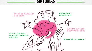 Infografía: Cáncer de cabeza y cuello