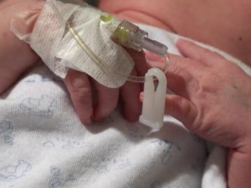 Carla, primer bebé español en recibir un corazón incompatible con su sangre