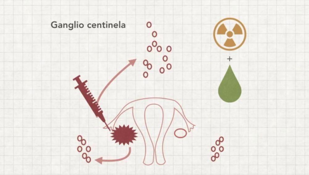 Estudio de la técnica del ganglio centinela para disminuir las secuelas de la cirugía en cáncer de ovario