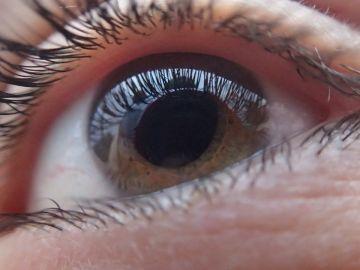Ojo con glaucoma