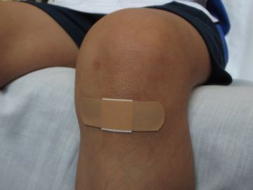 Niño con una herida