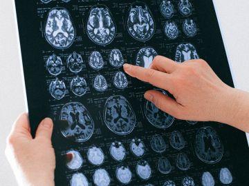 Radiografía cerebro
