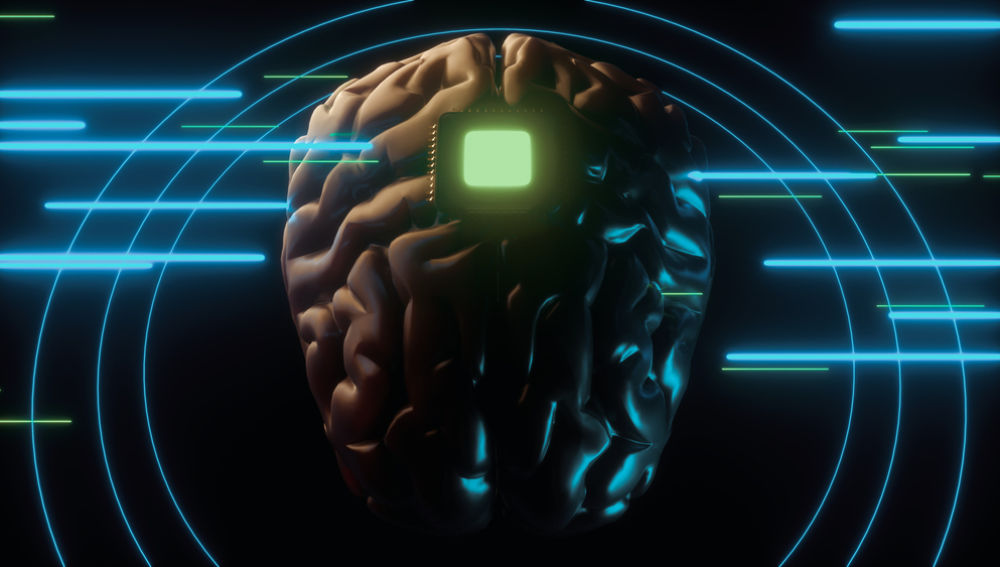 'Neuroderechos'