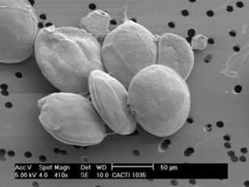 """Alga tóxica """"Gambierdiscus excentricus"""""""