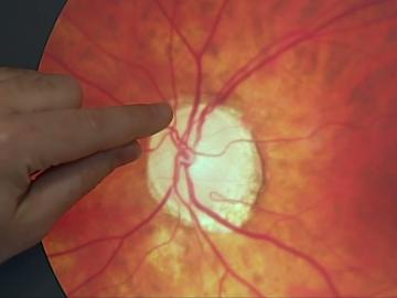 Captura glaucoma