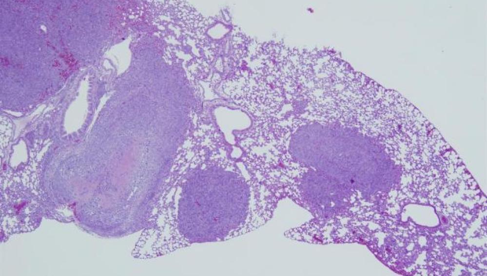 Propagación del cáncer de pulmón