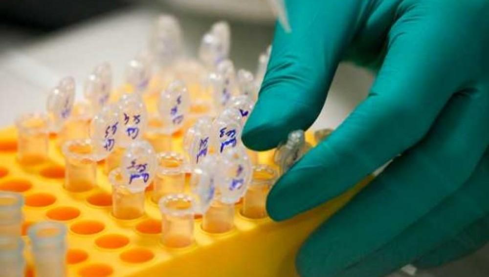 Identifican una proteína clave en el desarrollo del cáncer de páncreas