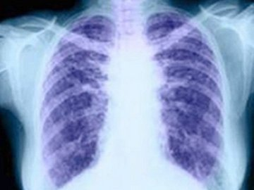 El cáncer de pulmón