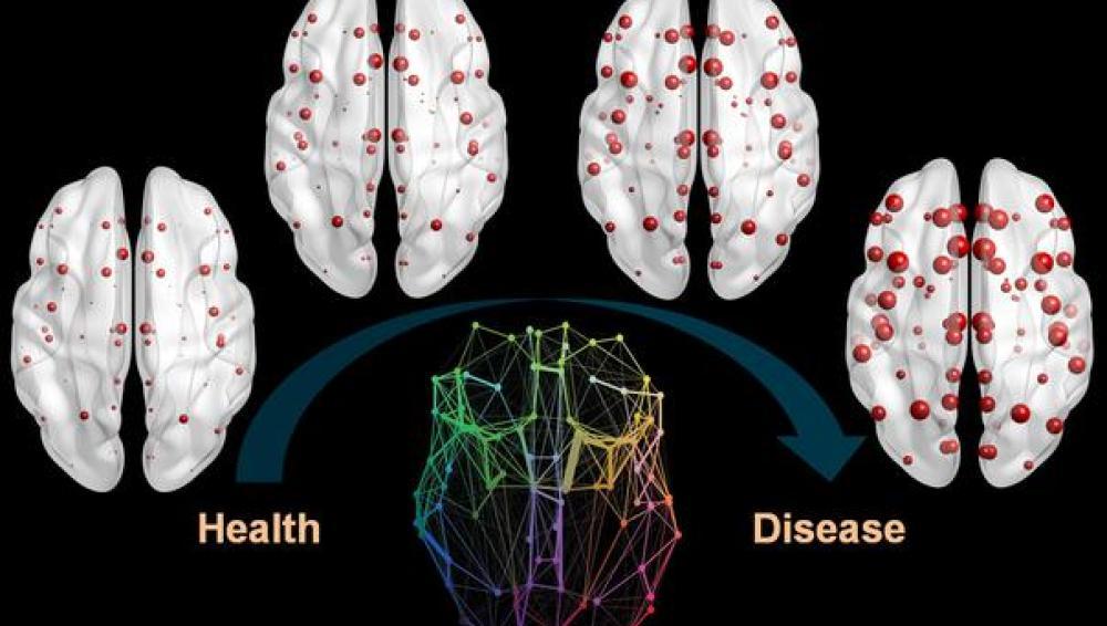 Las proteínas vinculadas al alzhéimer se propagan en el cerebro como una epidemia