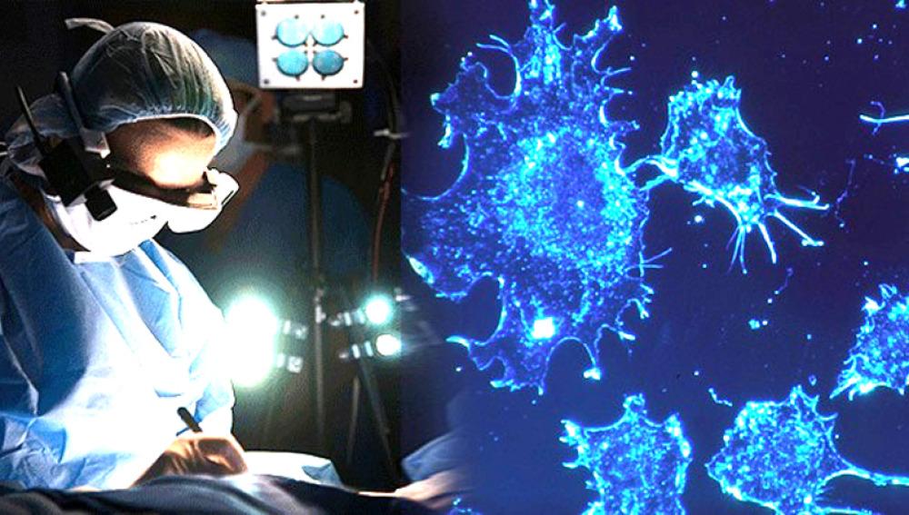 Desarrollan unas gafas que permiten 'ver' el cáncer
