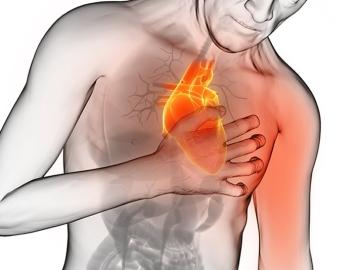 Ataque corazón