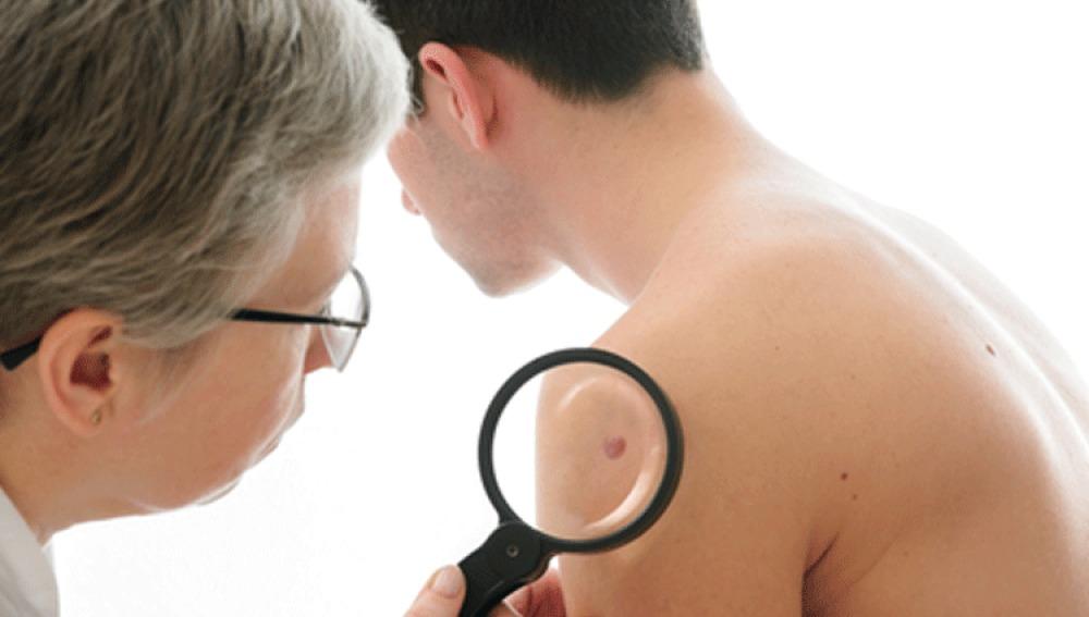 Los síntomas de alerta para detectar el cáncer