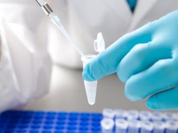 La biopsia líquida una nueva técnica para analizar la evolución del cáncer