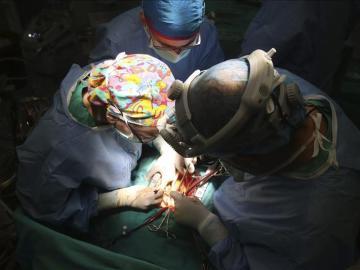 Operación de trasplante.
