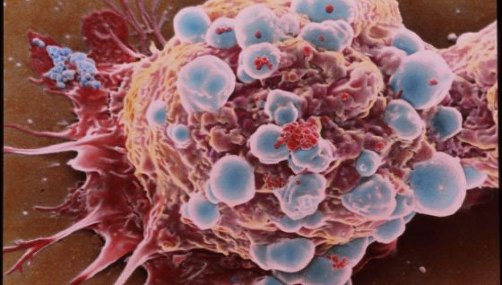 Descubren una mutación genética que permitiría diseñar nuevas terapias contra el cáncer