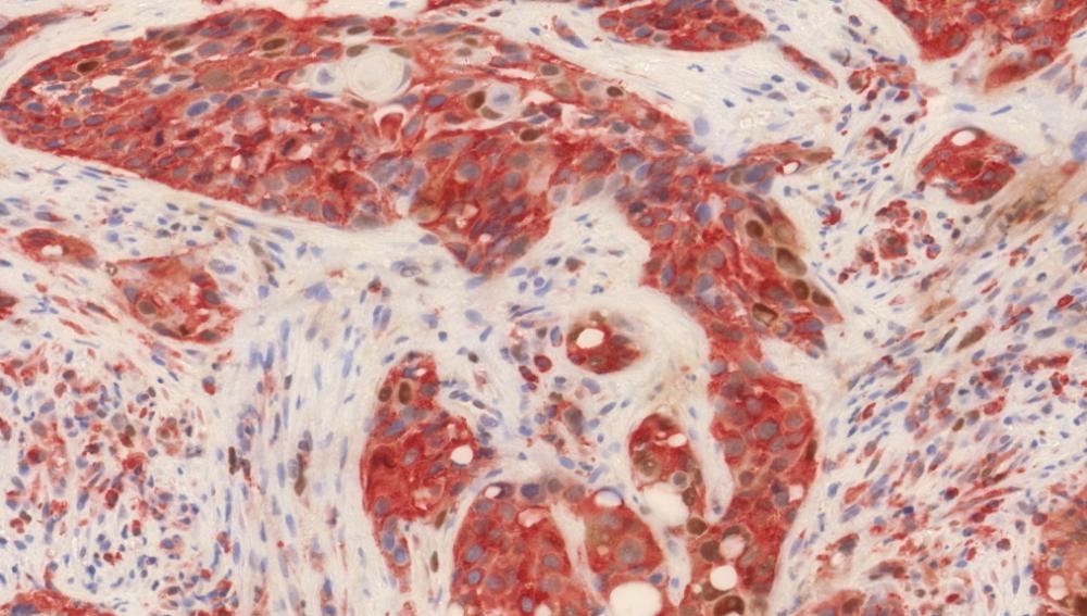 Científicos del CNIO hallan nuevos marcadores tumorales para pronositicar el cáncer de cabeza y cuello