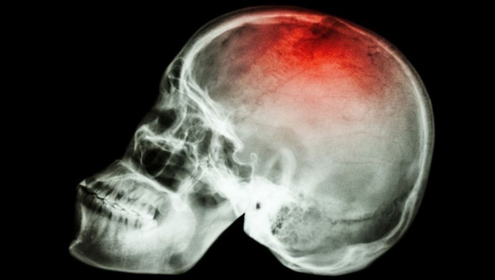 Identifican unos genes asociados con los accidentes cerebrovasculares
