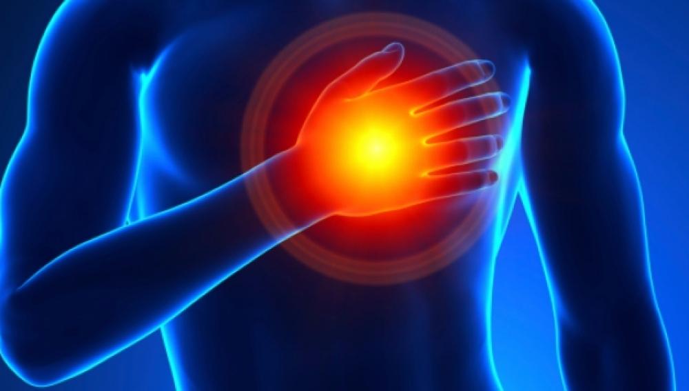 Pericarditis, una inflamación del corazón