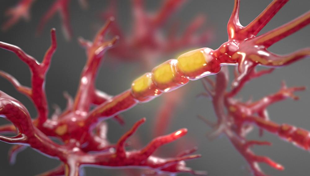 Identifican el impulsor clave del daño de las células nerviosas de la ELA