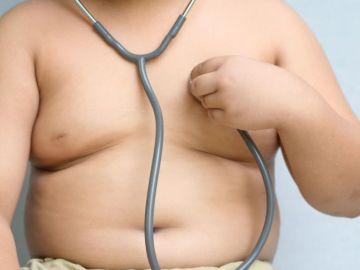 España es uno de los países europeos con mayor incidencia de obesidad infantil