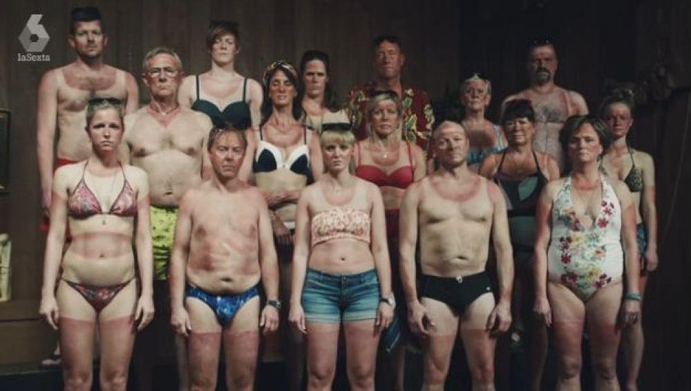 'Ayuda a un danés', una campaña para concienciar sobre el cáncer de piel