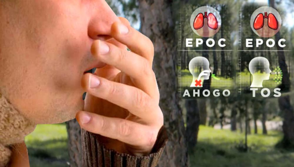síntomas de la EPOC