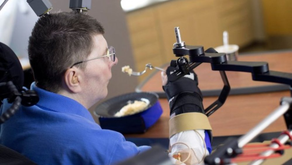Un hombre tetrapléjico consigue mover su brazo gracias a una neuroprótesis