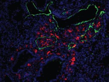 Células de melanoma metastásico (rojo) en vasos linfáticos en pulmón (verde)