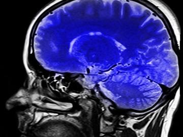 Descubren un nuevo método para detectar conciencia en pacientes inconscientes