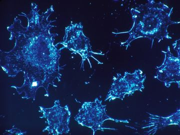 Imagen de archivo de células cancerosas