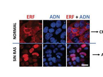 Las células tumorales podrían desarrollar resistencias frente a posibles inhibidores de Ras