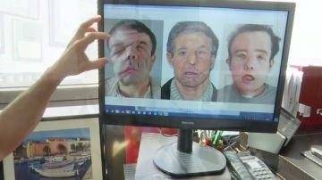 Un hombre se somete a dos trasplantes de cara por primera vez en la historia