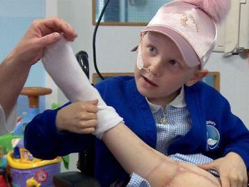 Una niña con cáncer de huesos podrá volver a bailar gracias una operación que sustituye su rodilla por su tobillo