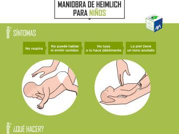 Maniobra Heimlich para menores de un año