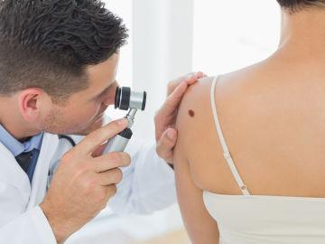 Prevención de melanoma