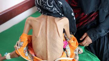 Fatima Qoba en una clínica de desnutrición
