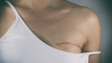 Cicatriz en la mama
