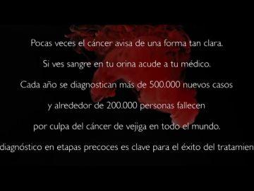 El grupo oncológico GO NORTE  lanza una campaña de concienciación para prevenir el cáncer de vejiga
