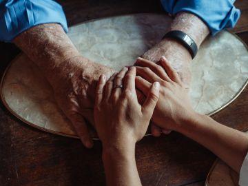 El Alzheimer es la principal causa de demencia